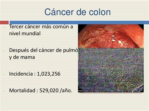 Generalidades de cancer de colon