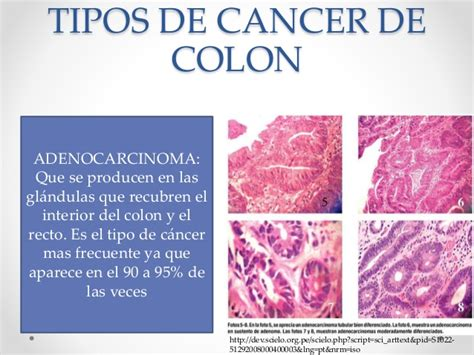 genetica cancer de colon
