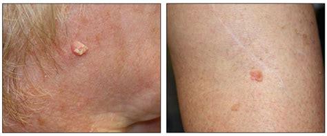 Genetics of Skin Cancer  PDQ –Health Professional Version ...