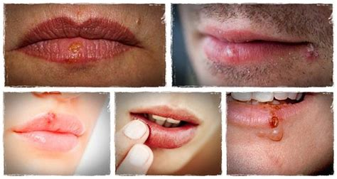 Get to Know 13 Tips on How to Get Rid of Cold Sores ...
