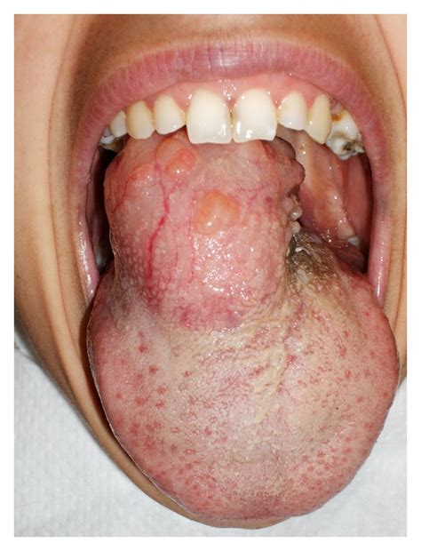 Giant Plexiform Schwannoma of the Tongue : Figure 1