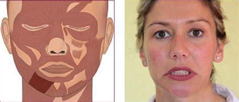 Gimnasia Facial
