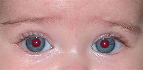 Gimp – Eliminar ojos rojos – Informática SJB