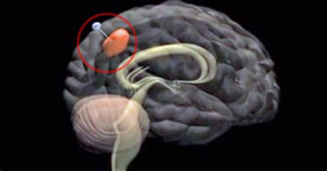 Glioblastoma brain tumors treated with promising new ...