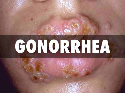 Go Read This to Know More About Gonorrhea — HealthDigezt.com