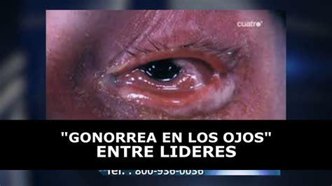 GONORREA EN LOS OJOS   YouTube