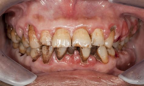 Gum disease incites deadly oral cancer growth   The Dental ...