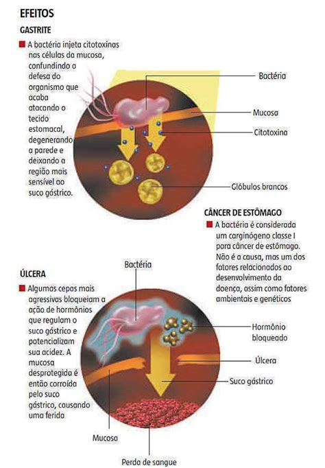 H. pylori causa gastrite, úlcera e aumenta o risco de ...
