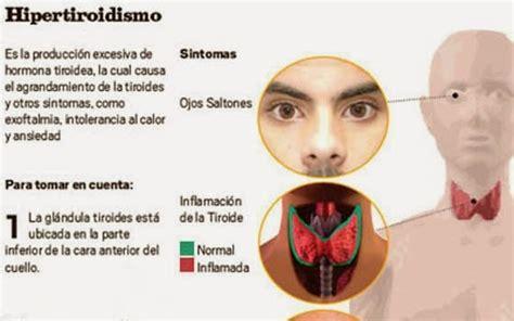 Hablemos de salud.: Hipertiroidismo, síntomas, causas y ...