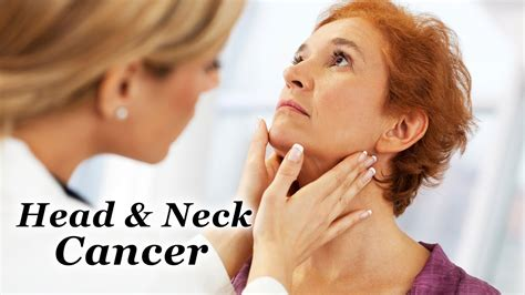 Head & Neck Cancer   Symptoms and Signs   YouTube