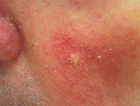 HEALTH FROM TRUSTED SOURCES: Squamous Cell Carcinoma of ...