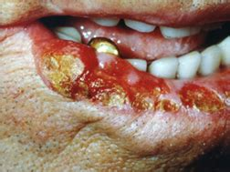Health Topics Blogs : Symptoms For Mouth Cancer