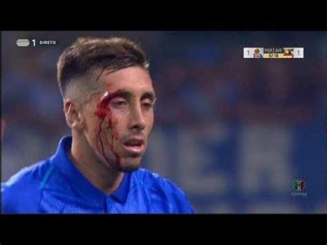 Hector Herrera después de sus Cirujias su rostro sale ...