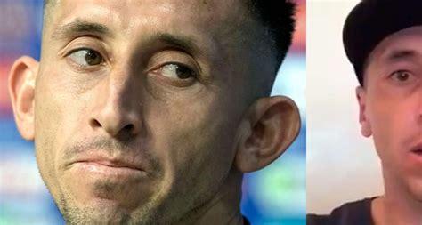 Héctor Herrera estrena nuevo rostro después de cirugía ...