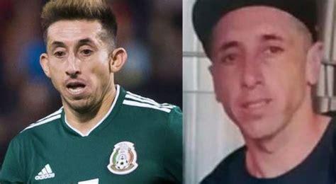 Héctor Herrera se muestra tras operación de orejas y nariz