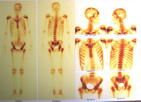 HEMATOCIENCIAS: CANCER DE PROSTATA, METASTASIS OSEA ...