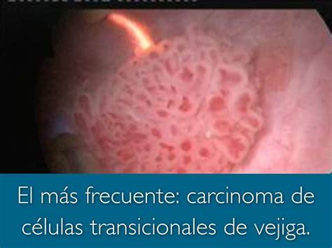 Hematuria by carbrinix