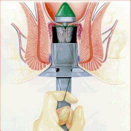 Hemorroidectomia con Engrapadora PPH
