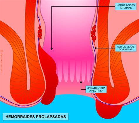 Hemorroides Prolapsadas   Almorranas.com