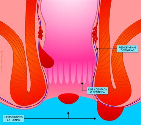 Hemorroides | Tratamiento de Hemorroides | Curar Hemorroides
