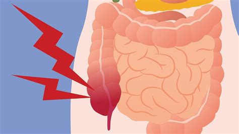 Here s What May Be Causing Your Digestive Gas Pain ...