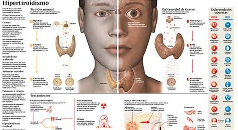 Hipertiroidismo: qué es, causas, síntomas y tratamiento. CUN