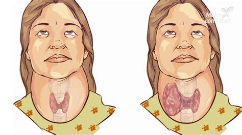Hipotiroidismo: definición, síntomas y tratamientos ...
