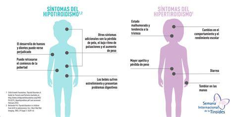 Hipotiroidismo: la falta de síntomas específicos complican ...