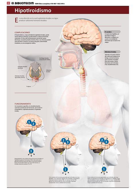 Hipotiroidismo