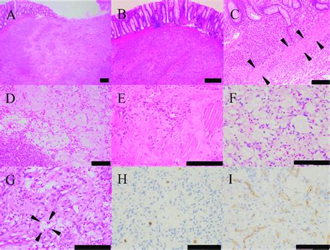Histopathological findings of the rectal tumor. The tumor ...