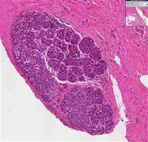 Histopathology Breast  Lobular carcinoma in situ   YouTube