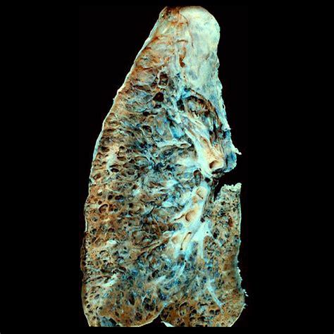 Honeycomb lung: gross pathology | Image | Radiopaedia.org