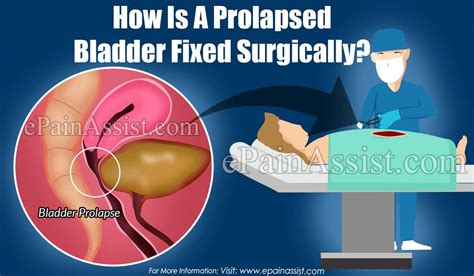 How Is A Prolapsed Bladder Fixed Surgically?