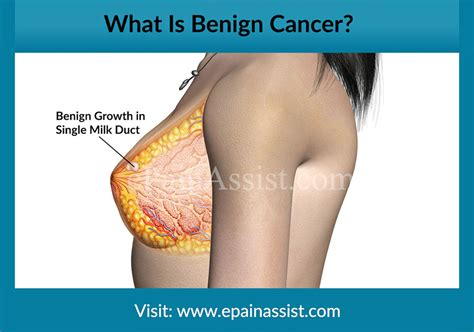 How is Pain Generated in Benign and Malignant Cancer?