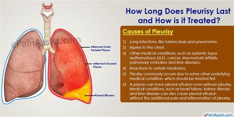 How Long Does Pleurisy Last and How is it Treated ...
