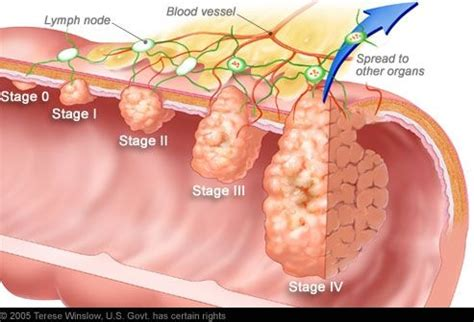 How Many Stages Are There In Colon Cancer   Cancer News Update