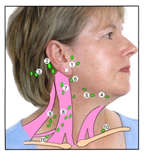 How to Check Your Lymph Nodes   BAD Patient Hub