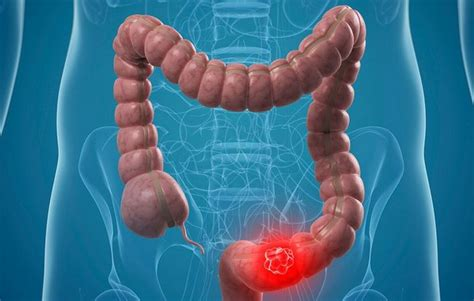 How To Identify Colon Cancer Signs And Prevention Of Colon ...
