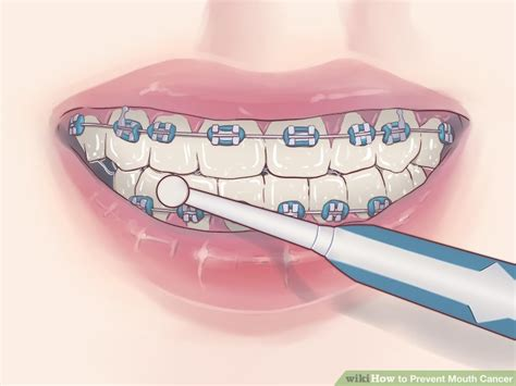 How to Prevent Mouth Cancer: 8 Steps  with Pictures    wikiHow