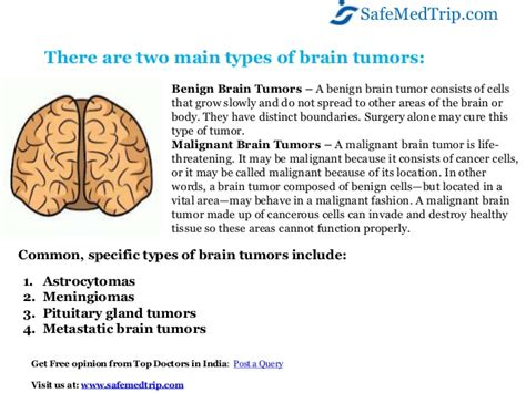 How to recognize symptoms of a brain tumor highly advanced ...