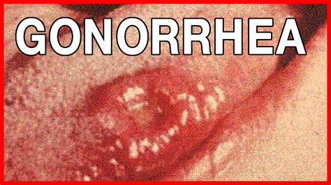 How to Recognize Symptoms of Gonorrhea in Women   YouTube