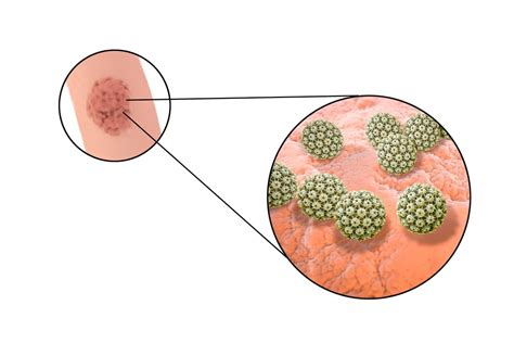 HPV / Genital Warts Symptoms, Treatment, Testing | STD HPV