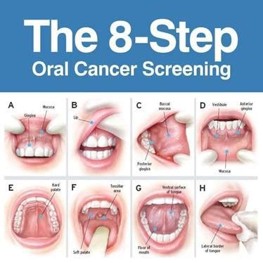 HPV   The Holistic Dentist