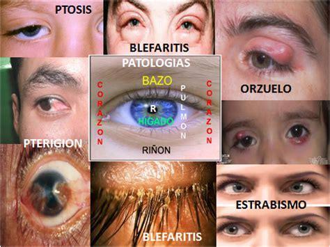 HUGO AUPART: DEFECTOS VISUALES E IRIDOLOGIA INTEGRAL