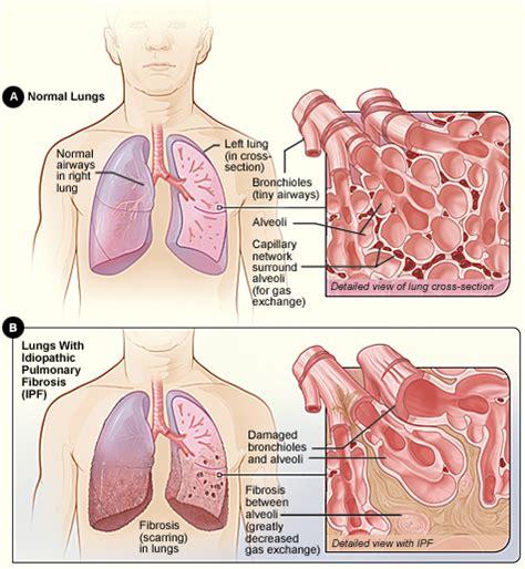 Idiopathic pulmonary fibrosis   Wikipedia