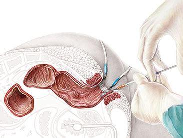 ileo neo rectal anastomosis   Guusje Bertholet