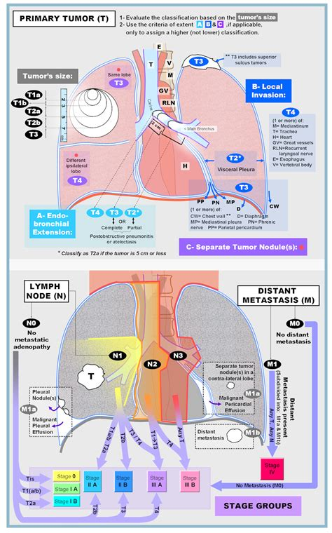 Imaging in Lung Cancer Staging   Cancer 101   Pinterest ...