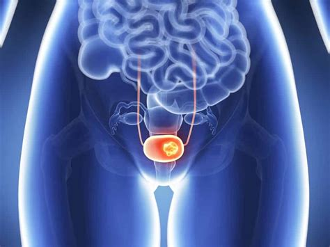 Immunotherapy Efficacy in Patients with Metastatic Bladder ...