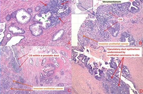 Impact of the Level of Urothelial Carcinoma Involvement of ...