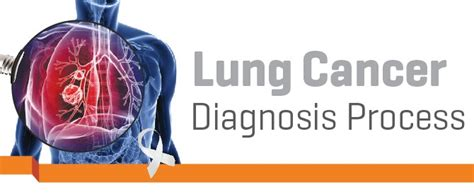 IMU NEWS   Lung cancer: Diagnosis Process